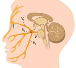 a trigeminus ideg gyulladása)