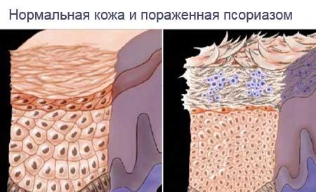 rózsaszín folt vörös peremmel a bőrön a pikkelysömör gyógyszerei belülről