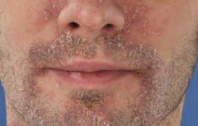 Atoderm SOS Spray | Azonnali megoldás a viszkető bőrre