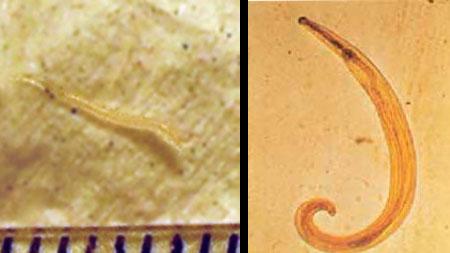 enterobiasis felnőttek tünetei és kezelése)