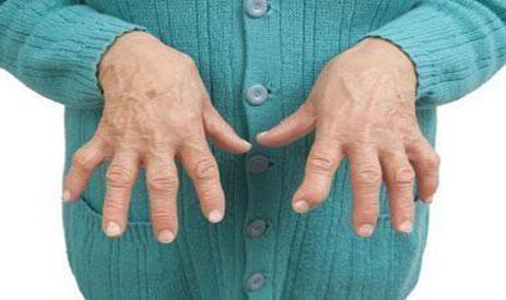 a kar ízületeinek gyulladásának jelei lábfájdalom ízületi műtét után
