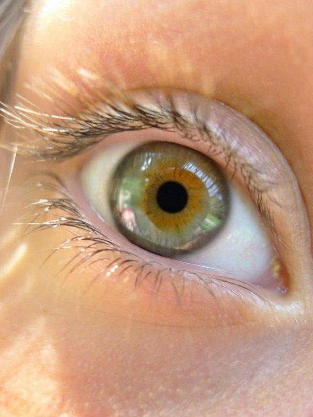 a szem színe megváltozik fogyás után)