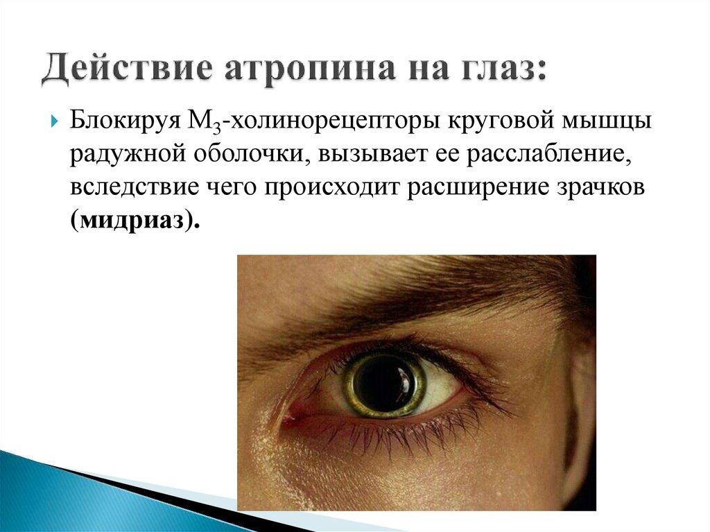 Cikloplegia (atropinizáció) gyermekek vizsgálatára, Myopia kezelés atropinnal