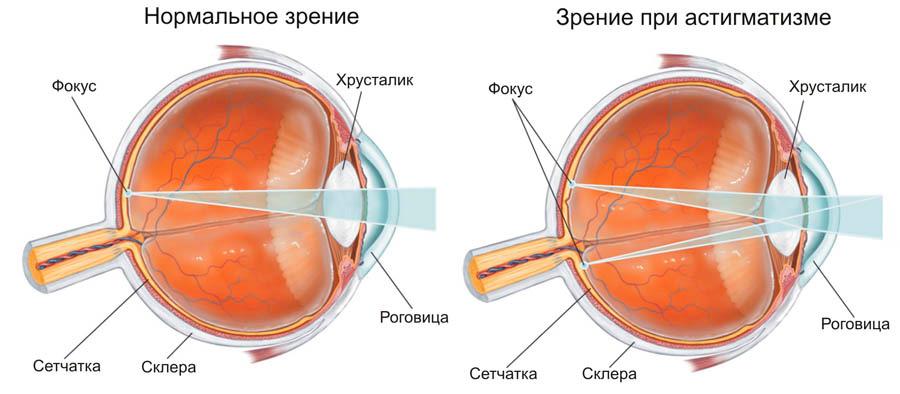 Szemtengely-ferdülés tünetei és kezelése - HáziPatika Látás 0 5 asztigmatizmus